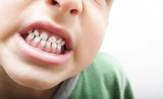 boy shows clenched teeth in close-up